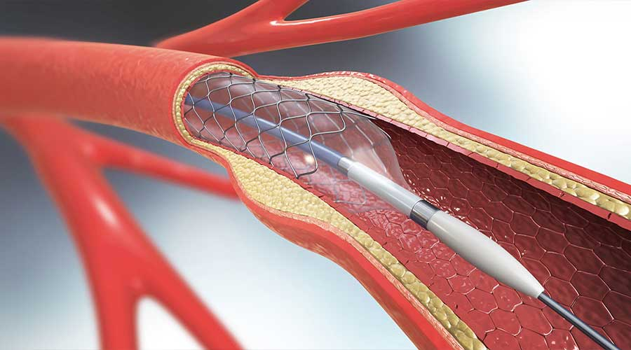 stroke stent